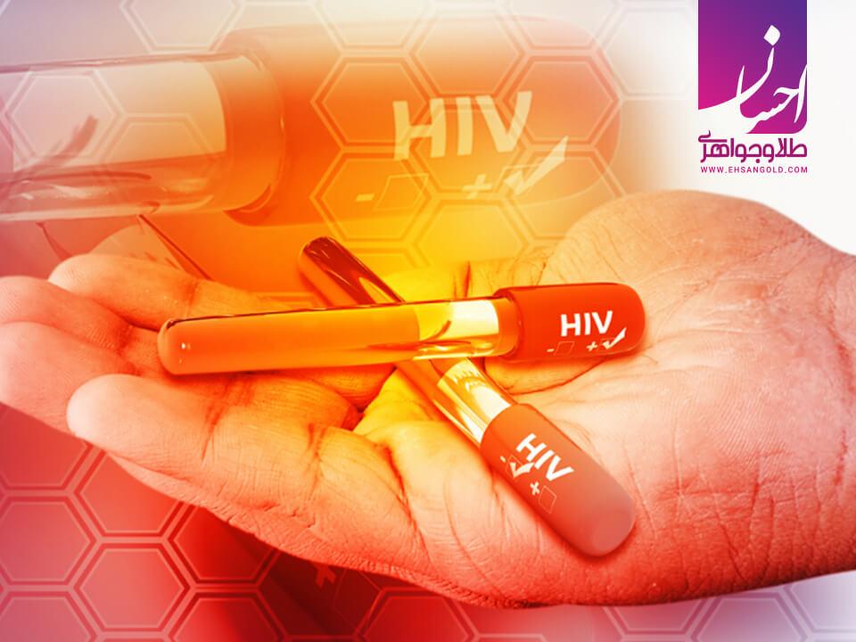 درمان ایدز|طلا|طلا و جواهر احسان|فروش اقساطی طلا