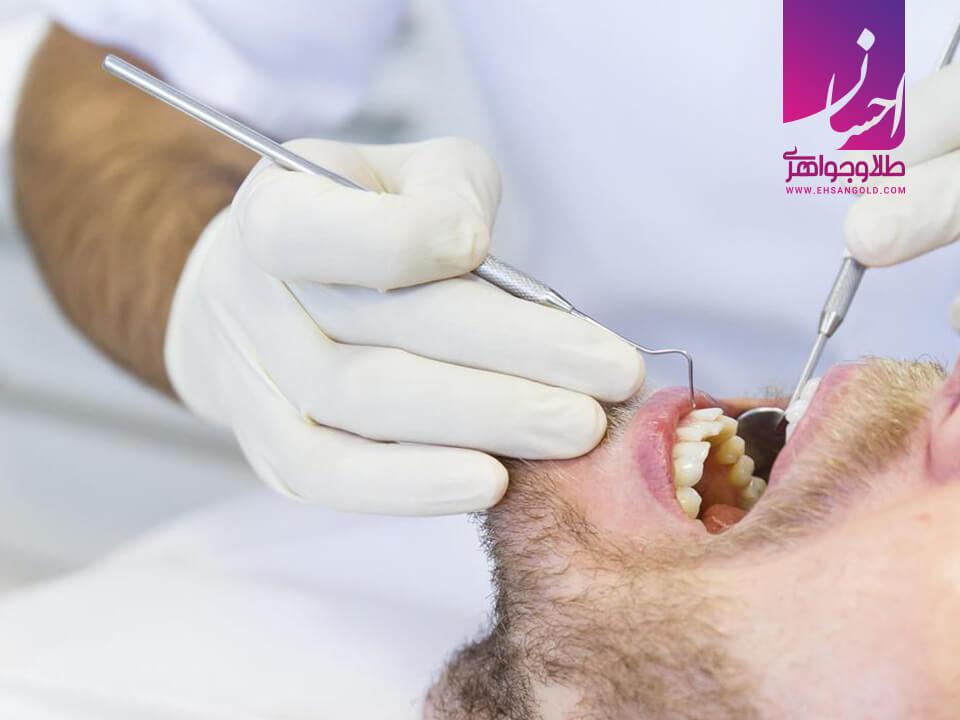 استفاده از طلا در دندانپزشکی |طلا|طلا و جواهر احسان|فروش اقساطی طلا